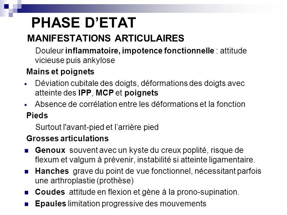 PHASE DETAT MANIFESTATIONS ARTICULAIRES Douleur inflammatoire, impotence fonctionnelle : attitude vicieuse puis ankylose Mains et poignets Déviation c