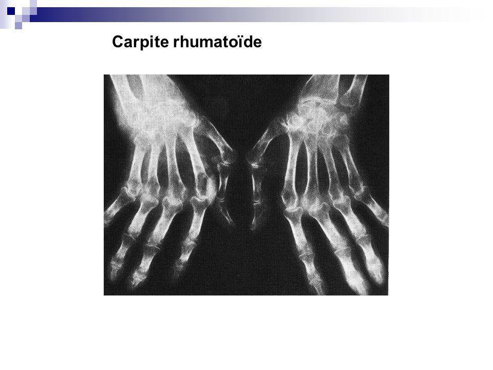 Carpite rhumatoïde