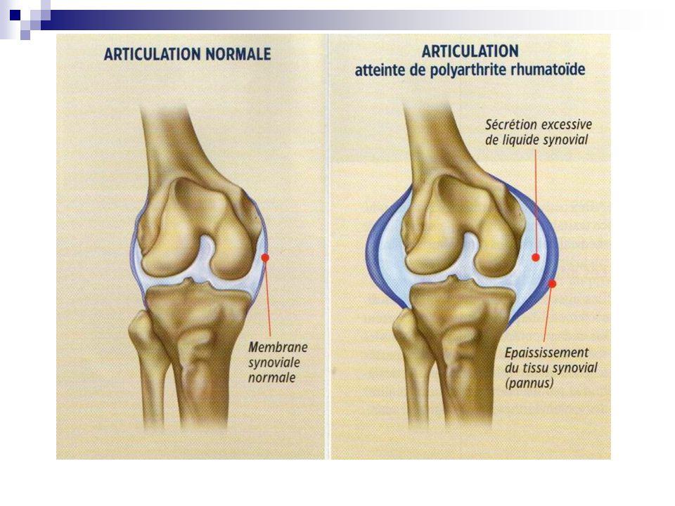 ANATOMOPATHOLOGIE Atteintes péri-articulaires : prolifération synoviale responsable dune atteinte des tendons, des capsules articulaires et des ligaments déformations articulaires