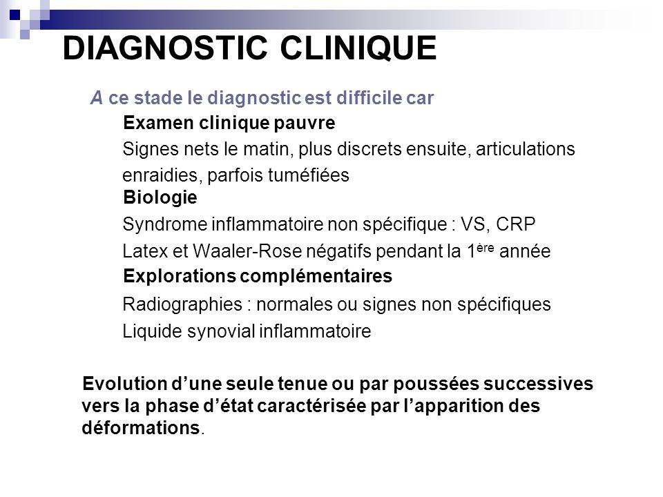 DIAGNOSTIC CLINIQUE A ce stade le diagnostic est difficile car Examen clinique pauvre Signes nets le matin, plus discrets ensuite, articulations enrai
