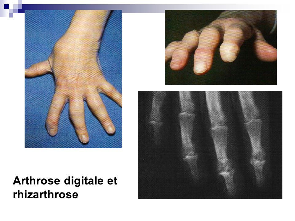 Arthrose digitale et rhizarthrose