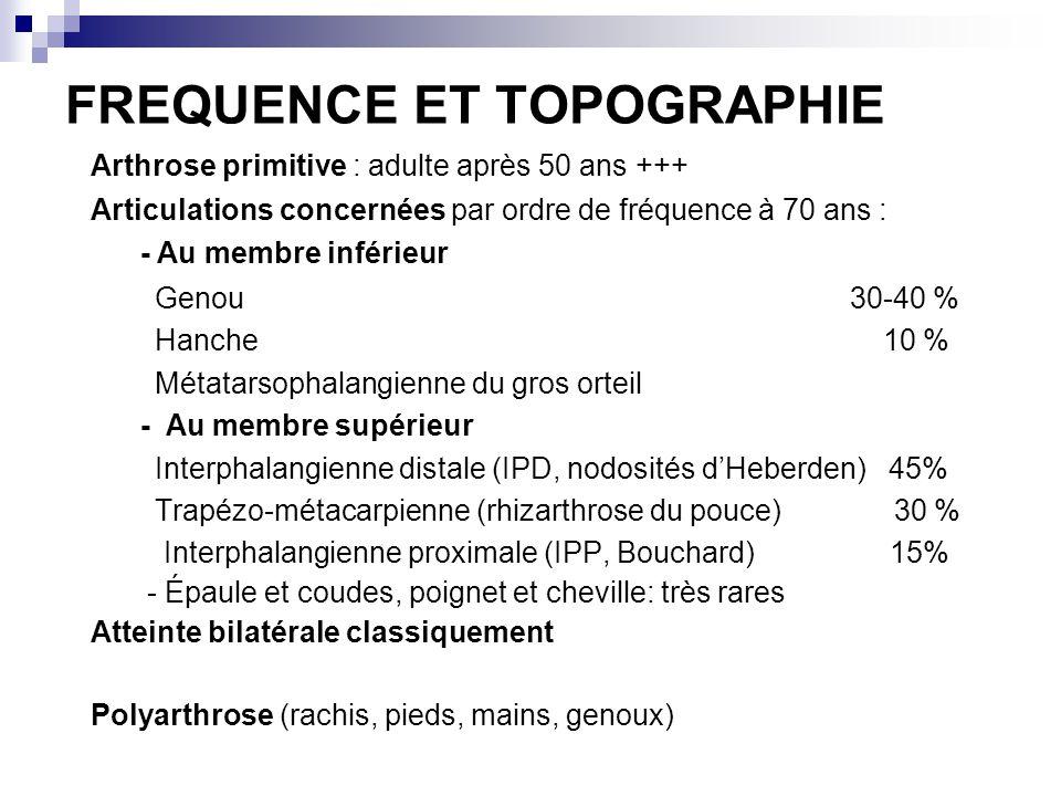 FREQUENCE ET TOPOGRAPHIE Arthrose primitive : adulte après 50 ans +++ Articulations concernées par ordre de fréquence à 70 ans : - Au membre inférieur Genou 30-40 % Hanche 10 % Métatarsophalangienne du gros orteil - Au membre supérieur Interphalangienne distale (IPD, nodosités dHeberden) 45% Trapézo-métacarpienne (rhizarthrose du pouce) 30 % Interphalangienne proximale (IPP, Bouchard) 15% - Épaule et coudes, poignet et cheville: très rares Atteinte bilatérale classiquement Polyarthrose (rachis, pieds, mains, genoux)