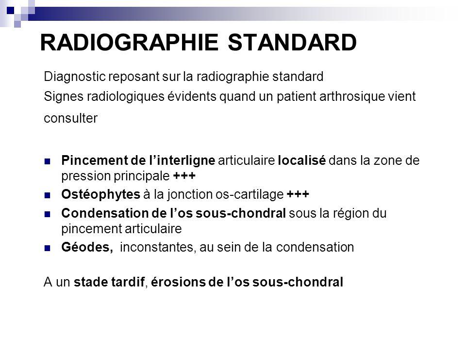 RADIOGRAPHIE STANDARD Diagnostic reposant sur la radiographie standard Signes radiologiques évidents quand un patient arthrosique vient consulter Pincement de linterligne articulaire localisé dans la zone de pression principale +++ Ostéophytes à la jonction os-cartilage +++ Condensation de los sous-chondral sous la région du pincement articulaire Géodes, inconstantes, au sein de la condensation A un stade tardif, érosions de los sous-chondral