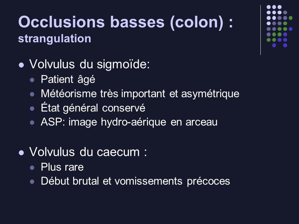 Occlusions basses (colon) : strangulation Volvulus du sigmoïde: Patient âgé Météorisme très important et asymétrique État général conservé ASP: image