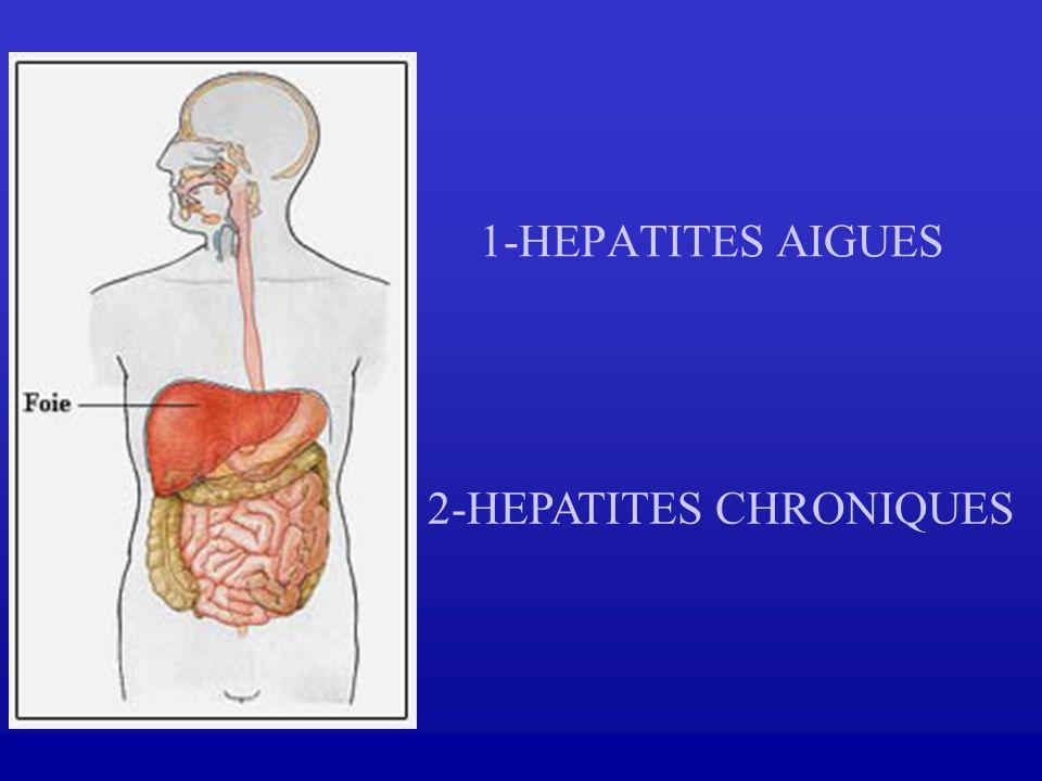 1-HEPATITES AIGUES 2-HEPATITES CHRONIQUES