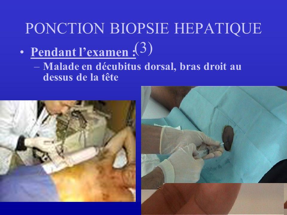 PONCTION BIOPSIE HEPATIQUE (3) Pendant lexamen : –Malade en décubitus dorsal, bras droit au dessus de la tête