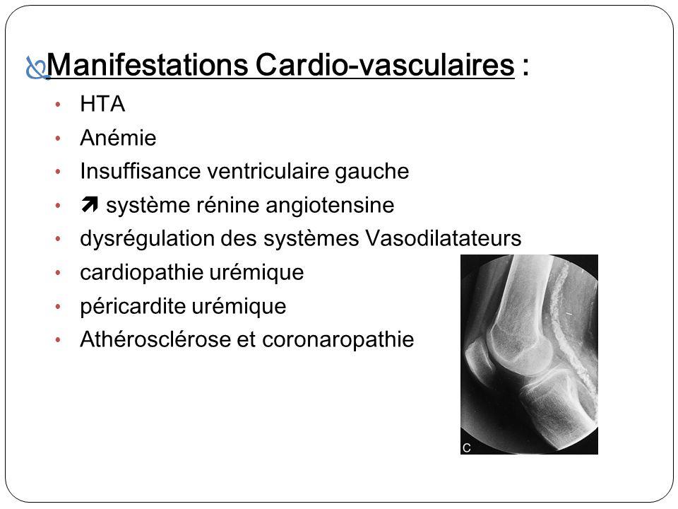 Manifestations Cardio-vasculaires : HTA Anémie Insuffisance ventriculaire gauche système rénine angiotensine dysrégulation des systèmes Vasodilatateur