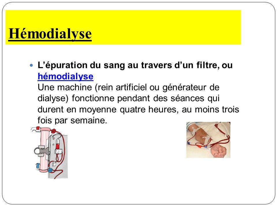 Hémodialyse Lépuration du sang au travers dun filtre, ou hémodialyse Une machine (rein artificiel ou générateur de dialyse) fonctionne pendant des séa