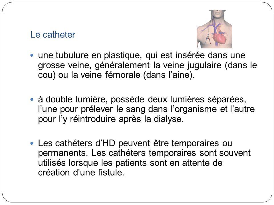 Le catheter une tubulure en plastique, qui est insérée dans une grosse veine, généralement la veine jugulaire (dans le cou) ou la veine fémorale (dans