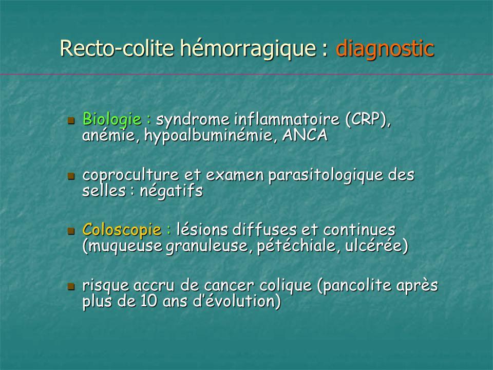 Recto-colite hémorragique : diagnostic Biologie : syndrome inflammatoire (CRP), anémie, hypoalbuminémie, ANCA Biologie : syndrome inflammatoire (CRP),