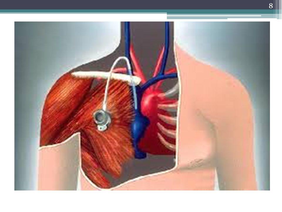 29 Le pansement Réalisé par lIDE Objectif: Empêcher la survenue de germes au point de ponction en observant des règles strictes dasepsie Doit être: Stérile Occlusif Transparent