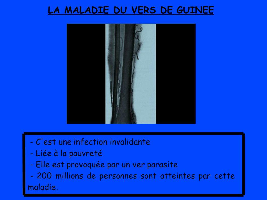 LA MALADIE DU VERS DE GUINEE - C est une infection invalidante - Liée à la pauvreté - Elle est provoquée par un ver parasite - 200 millions de personnes sont atteintes par cette maladie.