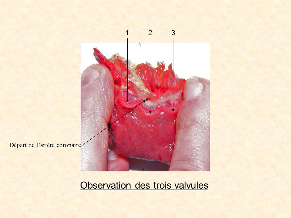 Observation des trois valvules 123 Départ de lartère coronaire