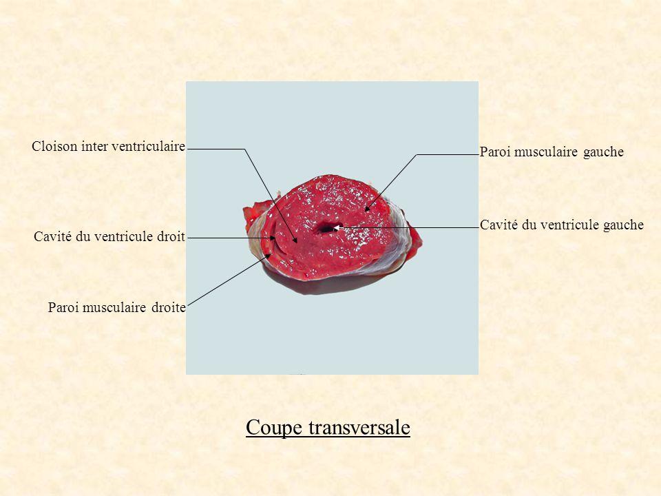 Coupe transversale Cloison inter ventriculaire Cavité du ventricule droit Paroi musculaire droite Paroi musculaire gauche Cavité du ventricule gauche