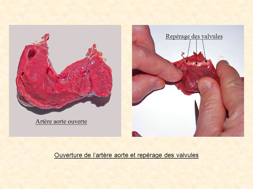 Repérage des valvules Ouverture de lartère aorte et repérage des valvules
