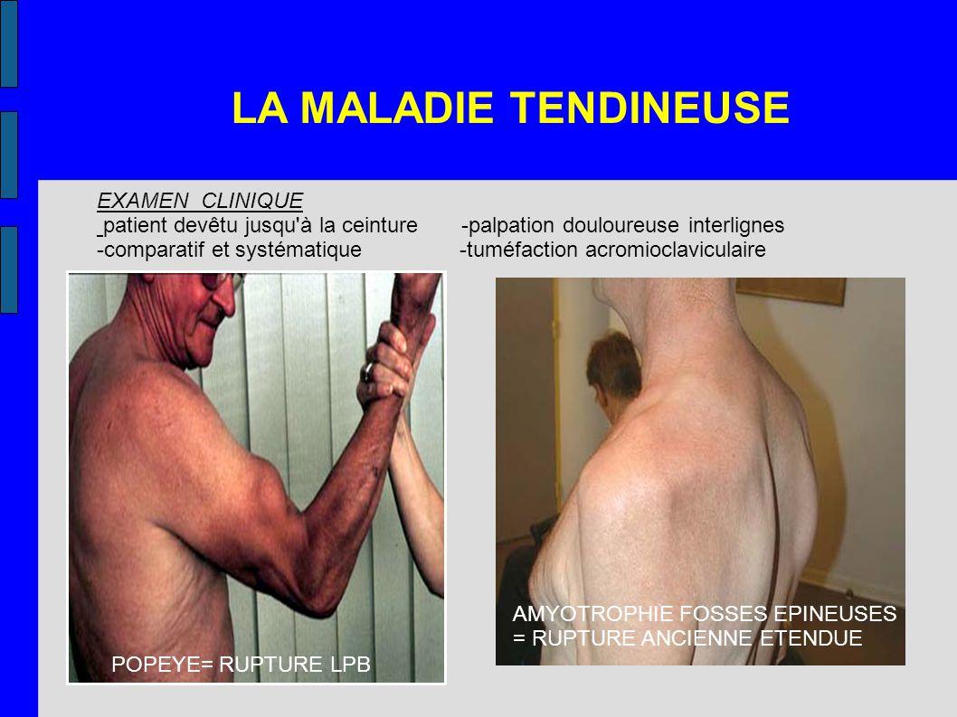LA MALADIE TENDINEUSE EXAMEN CLINIQUE patient devêtu jusqu'à la ceinture -palpation douloureuse interlignes -comparatif et systématique -tuméfaction a