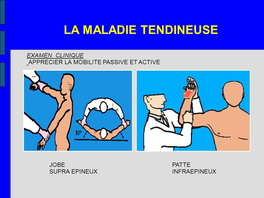 LA MALADIE TENDINEUSE EXAMEN CLINIQUE APPRECIER LA MOBILITE PASSIVE ET ACTIVE JOBE SUPRA EPINEUX PATTE INFRAEPINEUX