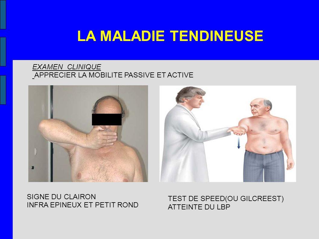 LA MALADIE TENDINEUSE EXAMEN CLINIQUE APPRECIER LA MOBILITE PASSIVE ET ACTIVE SIGNE DU CLAIRON INFRA EPINEUX ET PETIT ROND TEST DE SPEED(OU GILCREEST)