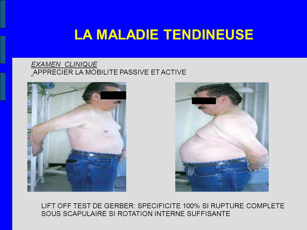 LA MALADIE TENDINEUSE EXAMEN CLINIQUE APPRECIER LA MOBILITE PASSIVE ET ACTIVE LIFT OFF TEST DE GERBER: SPECIFICITE 100% SI RUPTURE COMPLETE SOUS SCAPULAIRE SI ROTATION INTERNE SUFFISANTE