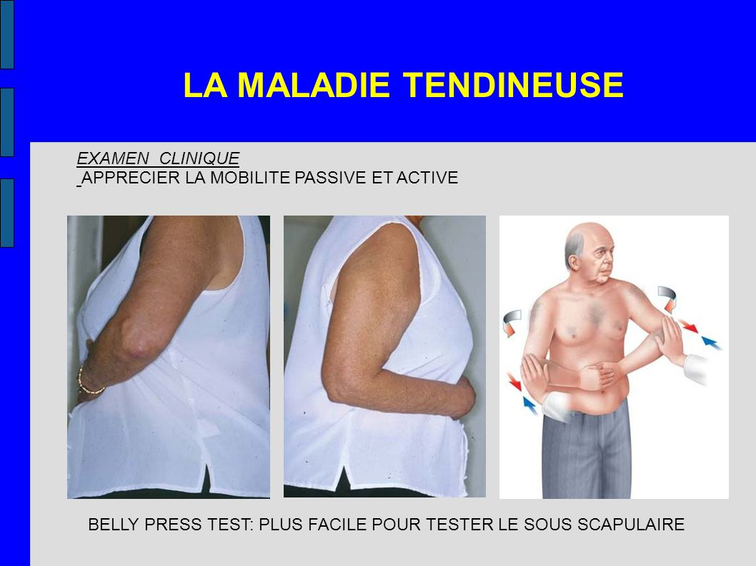 LA MALADIE TENDINEUSE EXAMEN CLINIQUE APPRECIER LA MOBILITE PASSIVE ET ACTIVE BELLY PRESS TEST: PLUS FACILE POUR TESTER LE SOUS SCAPULAIRE