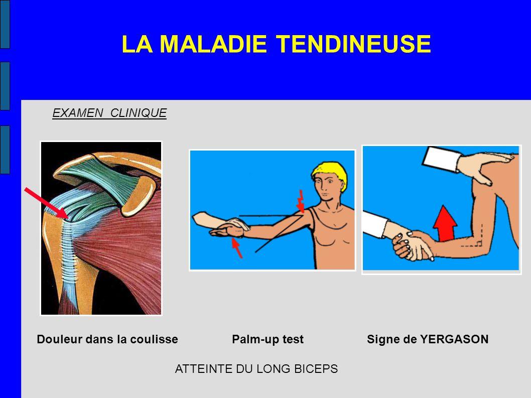 Douleur dans la coulisse Palm-up test Signe de YERGASON EXAMEN CLINIQUE ATTEINTE DU LONG BICEPS LA MALADIE TENDINEUSE
