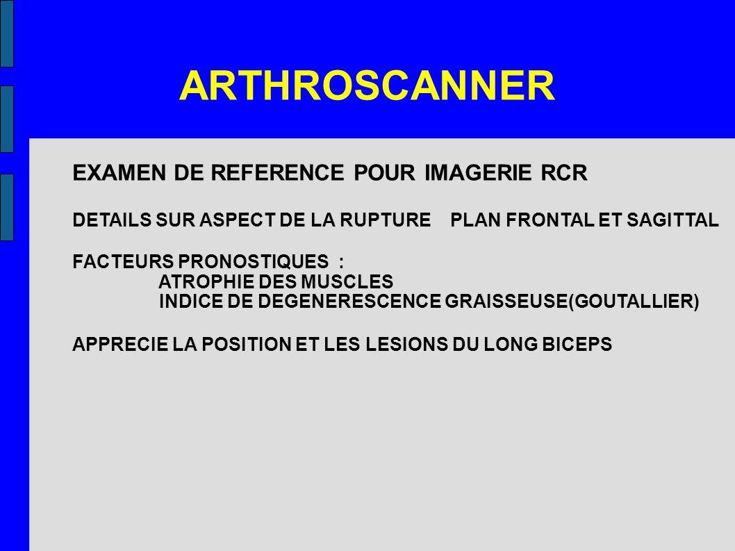 ARTHROSCANNER EXAMEN DE REFERENCE POUR IMAGERIE RCR DETAILS SUR ASPECT DE LA RUPTURE PLAN FRONTAL ET SAGITTAL FACTEURS PRONOSTIQUES : ATROPHIE DES MUS