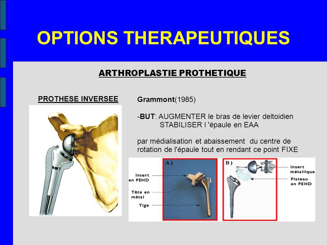 OPTIONS THERAPEUTIQUES ARTHROPLASTIE PROTHETIQUE PROTHESE INVERSEE Grammont(1985) -BUT: AUGMENTER le bras de levier deltoidien STABILISER l 'épaule en