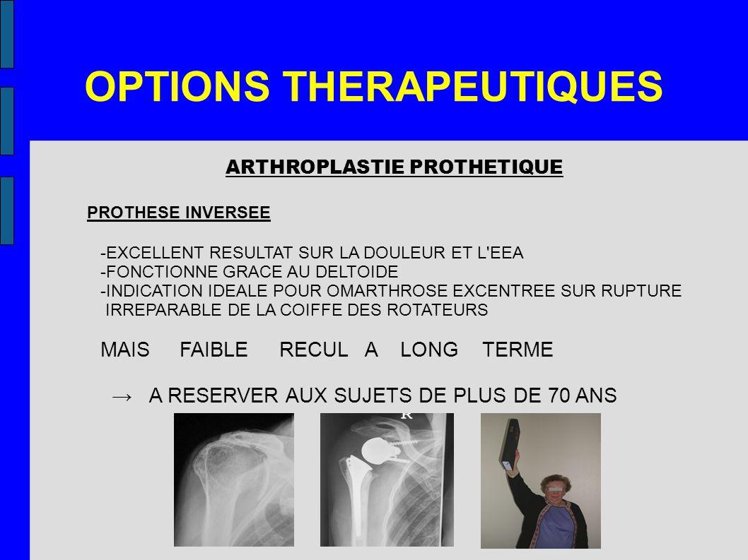 OPTIONS THERAPEUTIQUES ARTHROPLASTIE PROTHETIQUE PROTHESE INVERSEE -EXCELLENT RESULTAT SUR LA DOULEUR ET L'EEA -FONCTIONNE GRACE AU DELTOIDE -INDICATI
