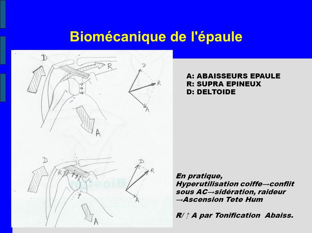 Biomécanique de l'épaule A: ABAISSEURS EPAULE R: SUPRA EPINEUX D: DELTOIDE En pratique, Hyperutilisation coiffeconflit sous ACsidération, raideur Asce