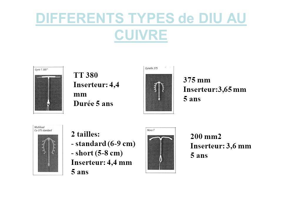 DIFFERENTS TYPES de DIU AU CUIVRE TT 380 Inserteur: 4,4 mm Durée 5 ans 375 mm Inserteur:3,65 mm 5 ans 2 tailles: - standard (6-9 cm) - short (5-8 cm)