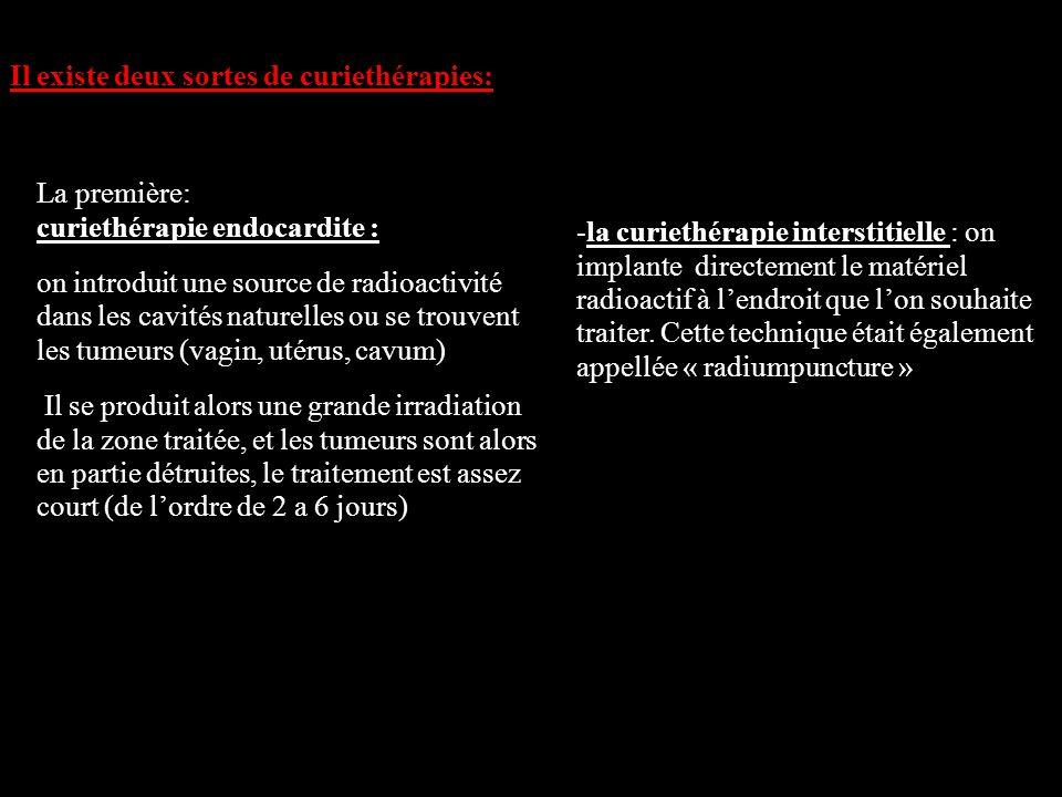 Il existe deux sortes de curiethérapies: La première: curiethérapie endocardite : on introduit une source de radioactivité dans les cavités naturelles