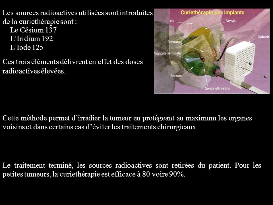 Les sources radioactives utilisées sont introduites lors de la curiethérapie sont : Le Césium 137 LIridium 192 LIode 125 Ces trois éléments délivrent