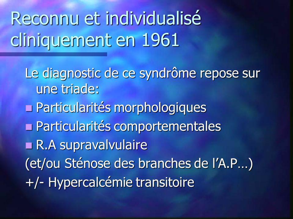 Reconnu et individualisé cliniquement en 1961 Le diagnostic de ce syndrôme repose sur une triade: Particularités morphologiques Particularités morphol