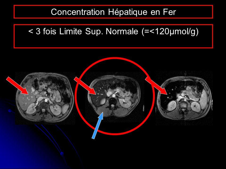 Concentration Hépatique en Fer < 3 fois Limite Sup. Normale (=<120µmol/g)