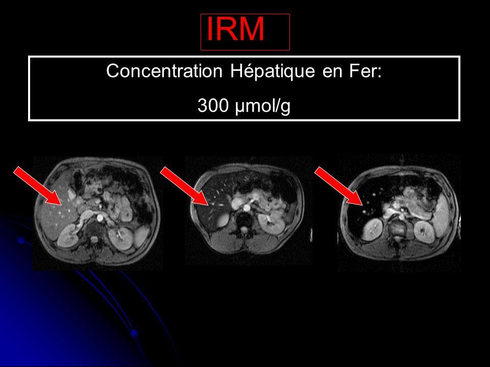 IRM Concentration Hépatique en Fer: 300 µmol/g