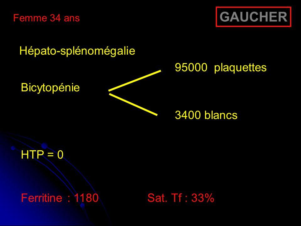 Femme 34 ans Hépato-splénomégalie Bicytopénie 95000 plaquettes 3400 blancs HTP = 0 Ferritine : 1180Sat. Tf : 33% GAUCHER