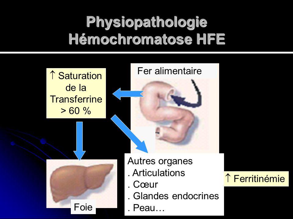 Physiopathologie Hémochromatose HFE Saturation de la Transferrine > 60 % Ferritinémie Fer alimentaire Foie Autres organes. Articulations. Cœur. Glande