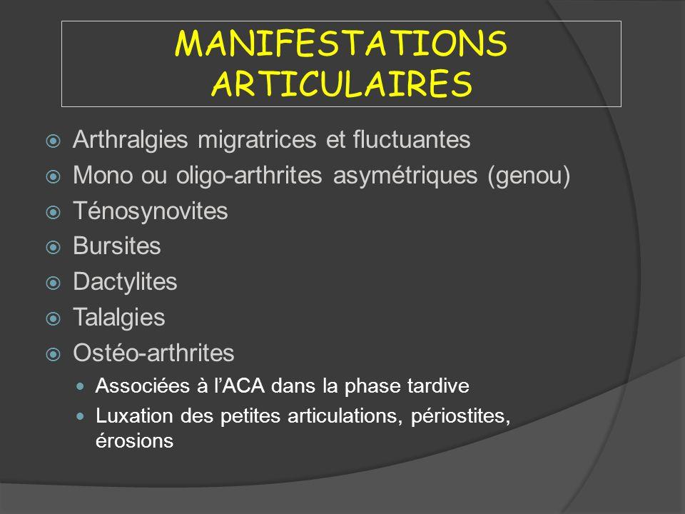 MANIFESTATIONS ARTICULAIRES Arthralgies migratrices et fluctuantes Mono ou oligo-arthrites asymétriques (genou) Ténosynovites Bursites Dactylites Tala