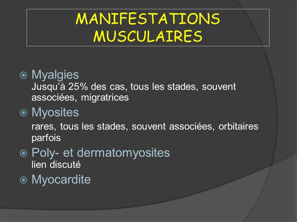 MANIFESTATIONS MUSCULAIRES Myalgies Jusquà 25% des cas, tous les stades, souvent associées, migratrices Myosites rares, tous les stades, souvent assoc