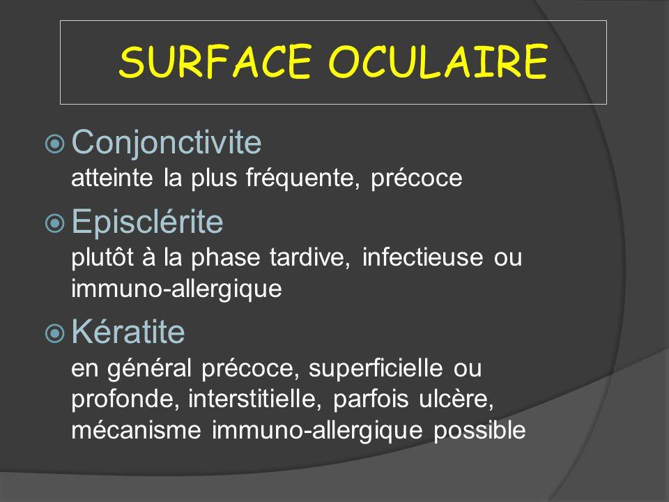 SURFACE OCULAIRE Conjonctivite atteinte la plus fréquente, précoce Episclérite plutôt à la phase tardive, infectieuse ou immuno-allergique Kératite en