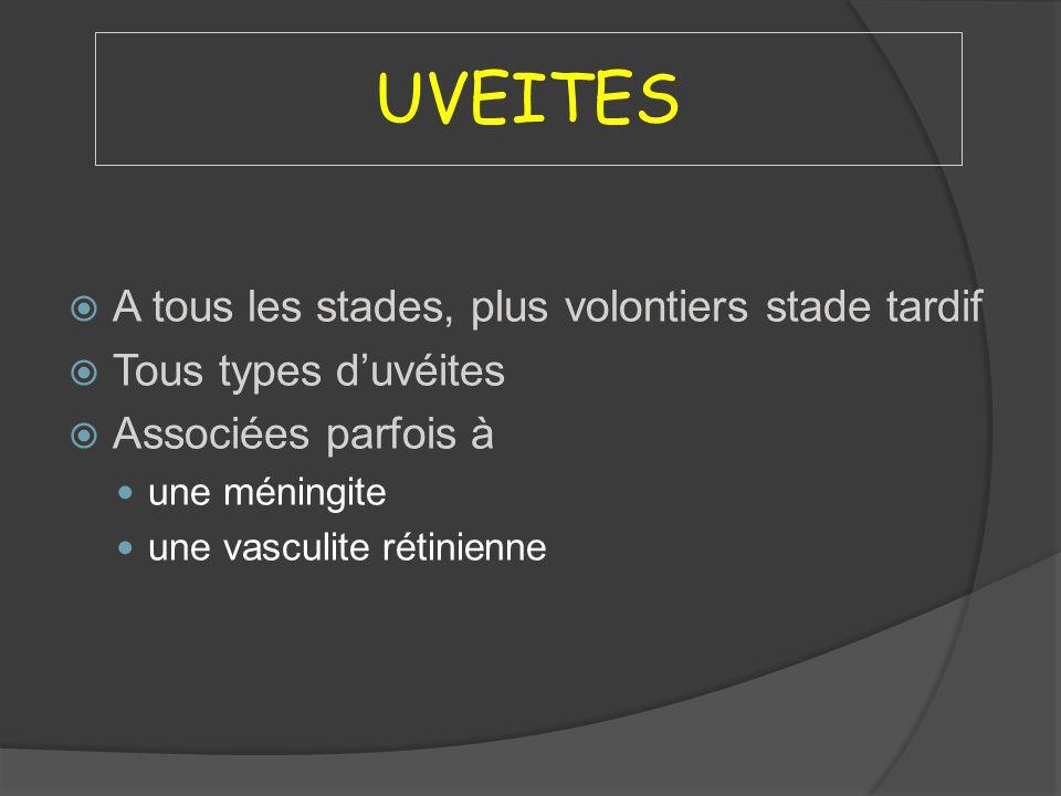 UVEITES A tous les stades, plus volontiers stade tardif Tous types duvéites Associées parfois à une méningite une vasculite rétinienne