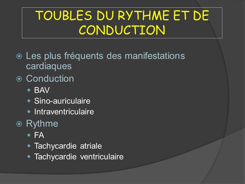 TOUBLES DU RYTHME ET DE CONDUCTION Les plus fréquents des manifestations cardiaques Conduction BAV Sino-auriculaire Intraventriculaire Rythme FA Tachy