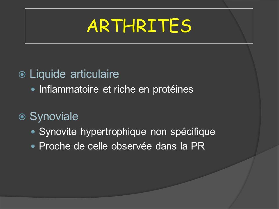 ARTHRITES Liquide articulaire Inflammatoire et riche en protéines Synoviale Synovite hypertrophique non spécifique Proche de celle observée dans la PR