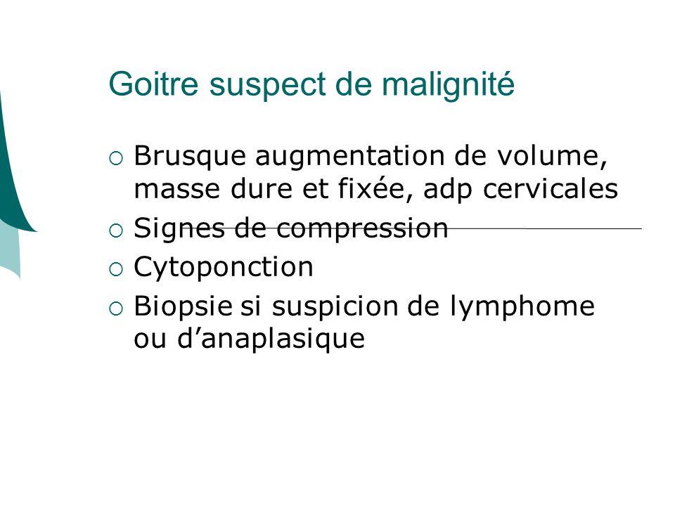 Goitre suspect de malignité Brusque augmentation de volume, masse dure et fixée, adp cervicales Signes de compression Cytoponction Biopsie si suspicion de lymphome ou danaplasique