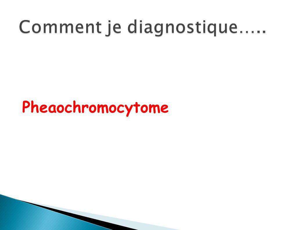 Pheaochromocytome