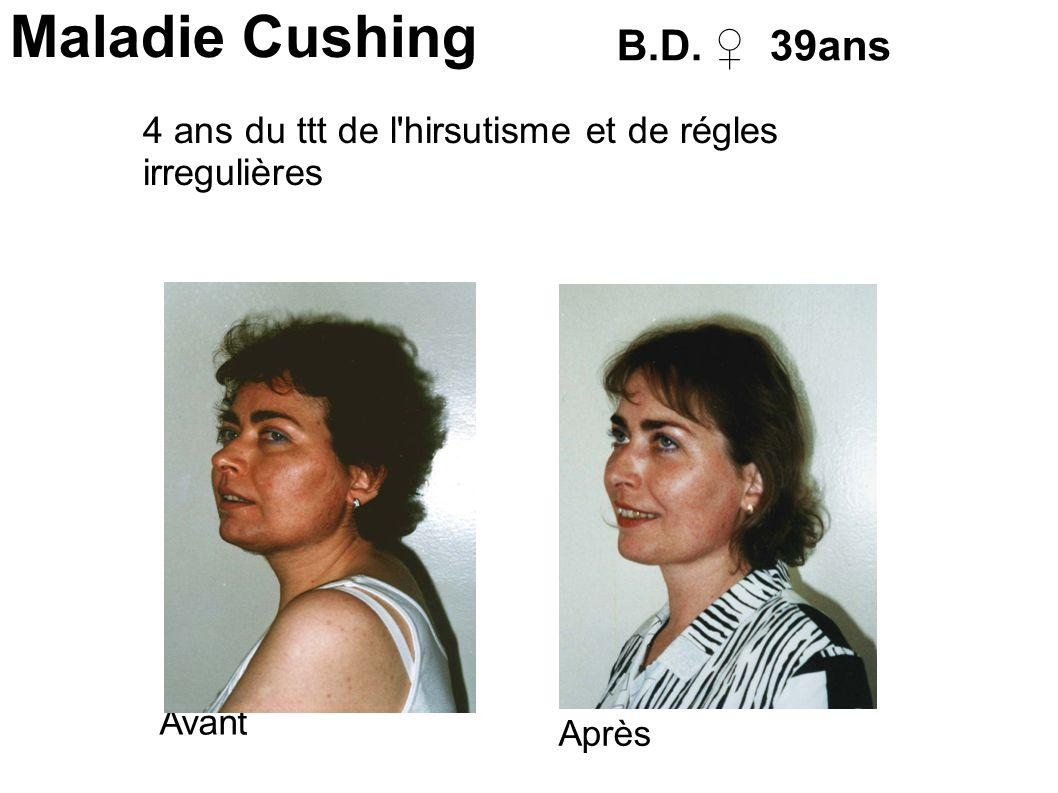 Maladie Cushing Avant Après B.D. 39ans 4 ans du ttt de l hirsutisme et de régles irregulières