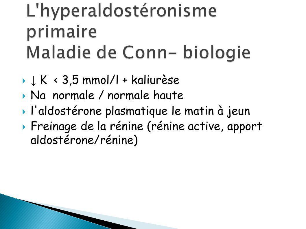 TDM surrénalienne Détecte toutes les tumeurs Ø >5mm IRM surrénalienne Scintigraphie surrénalienne à l iodo-cholestérol – peu utilisée