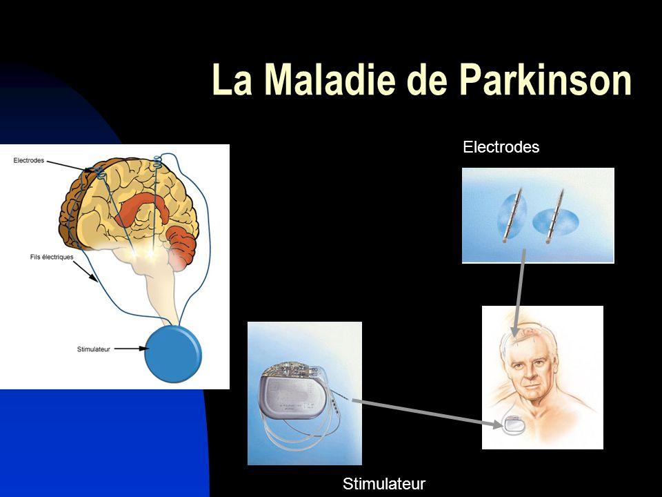 La Maladie de Parkinson Electrodes Stimulateur