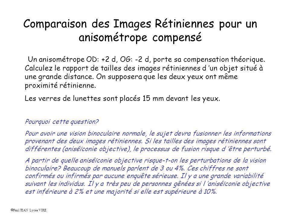 Comparaison des Images Rétiniennes pour un anisométrope compensé Un anisométrope OD: +2 d, OG: -2 d, porte sa compensation théorique.