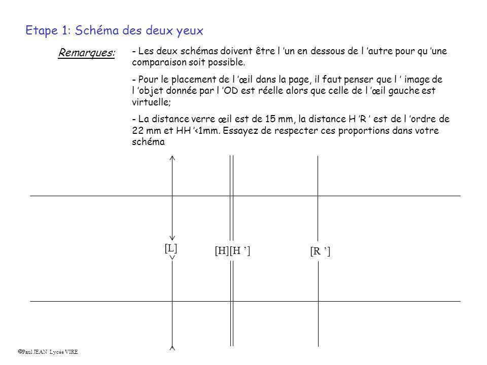Etape 1: Schéma des deux yeux Remarques: - Les deux schémas doivent être l un en dessous de l autre pour qu une comparaison soit possible.